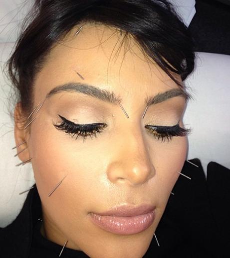 kim-kardashian-acupuncture