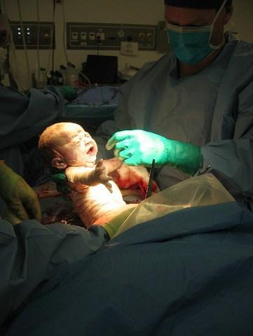 ava-birth